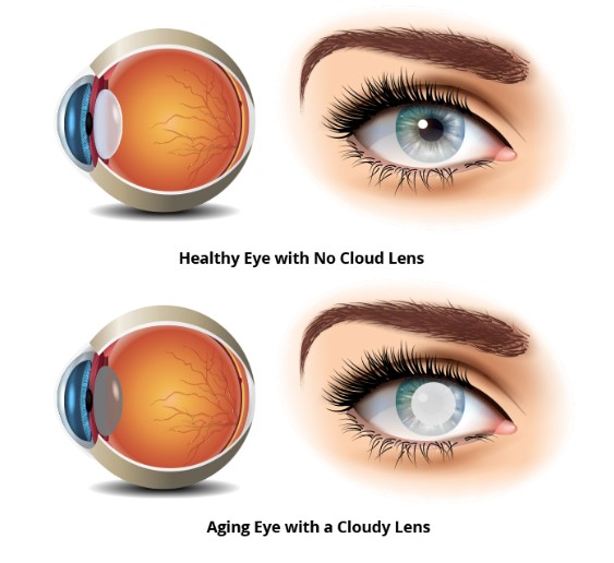 Cataract Surgery in Atlanta